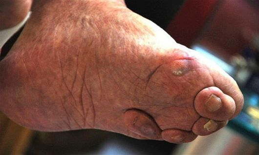 Chinese Foot Binding Tradition